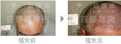 在三级脱发进行人工种植后还会不会脱落