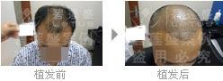 头发移植对于四级脱发的重要性