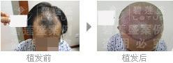 移植头发对四级脱发究竟靠不靠谱?