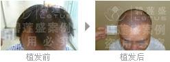 造成四级脱发植发后成活率低的因素有哪些