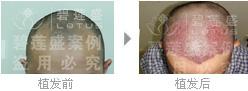 做四级脱发植发手术会疼吗?