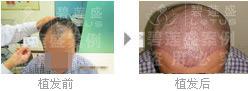 治疗四级脱发种植的头发能长多长?