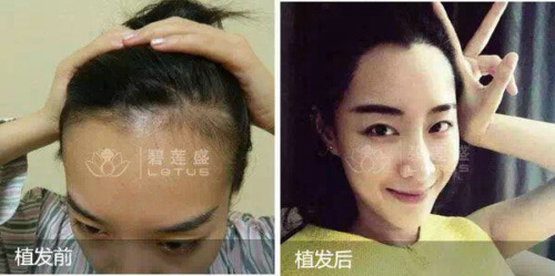 女的底下没有毛私处体毛种植案例
