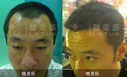 男性秃顶植发需要多少单位