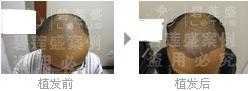由什么来决定五级脱发移植的毛囊数量呢?