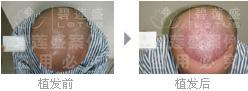 植发能给五级脱发患者带来什么好处?