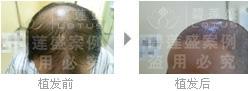 在五级脱发植发后应该怎么护理
