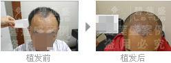 治疗五级脱发,植发手术会有疼痛感吗?