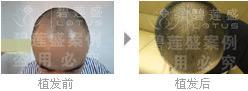 治疗五级脱发植发手术需要多长时间?