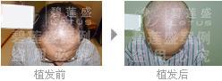一次五级脱发种植能维持多久?