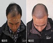 植发治疗比药物治疗效果好?植发后四个月效果如何?