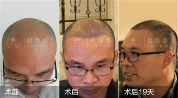 哪里选择植发效果恢复的快