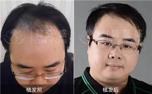 种植头发是什么样子的