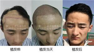 无疤痕植发头发手术效果怎么样