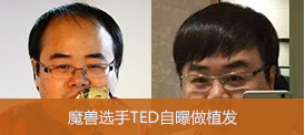 ted植发